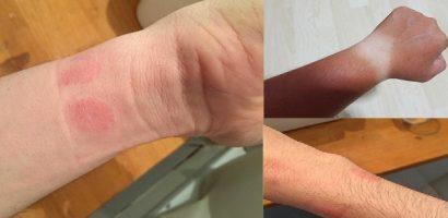 Những tác hại khi sử dụng đồng hồ đeo tay kém chất lượng